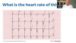 FB Live EKG Sinus Arrhythmias by Mobeen Syed MD