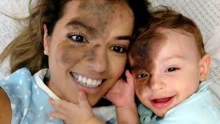 Mom Uses Makeup to Match Son's Facial Birthmark