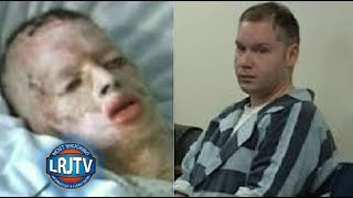 8-Year-Old Boy Raped & Burned Alive Names His Attacker
