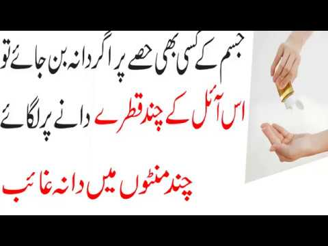 Beauty tip to Remove Instantly pimple on Face and Body|Desi Totkay