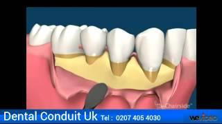 Gum Disease, Gum Disease Treatment, Bleeding Gums - Dental Conduit UK