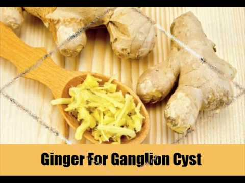 7 Natural Treatments For Ganglion Cyst