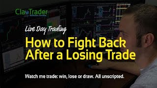 Live Day Trading - How to Fight Back After a Losing Trade
