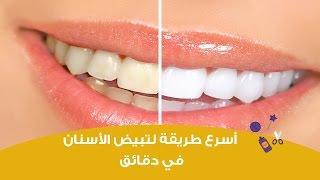 طريقة سريعة لتبيض الأسنان في دقائق   How To Whiten Teeth At Home