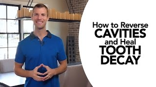 How to Treat Cavities and Reverse Tooth Decay Naturally