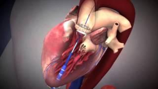 Transcatheter Aortic Valve Implantation (TAVI) - NUHCS - 2011