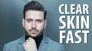 HOW TO GET CLEAR SKIN FAST   Men's Skincare Routine   ALEX COSTA