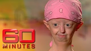 Extraordinary Hayley Okines on living with a rare ageing disease   60 Minutes Australia