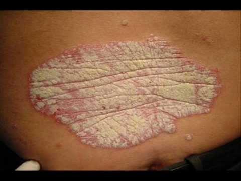 Psoriasis Skin Disease part 1 , HEALTH EDUCATION , INFECTION CONTROL (ICSP) , URDU / HINDI .