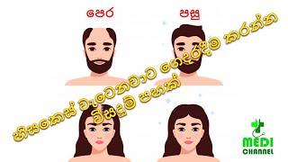 හිසකෙස් ගැලවී යනවද.? මෙන්න විසදුම hisakes galawee yanawada.?menna wisaduma (solutions for hair loss)