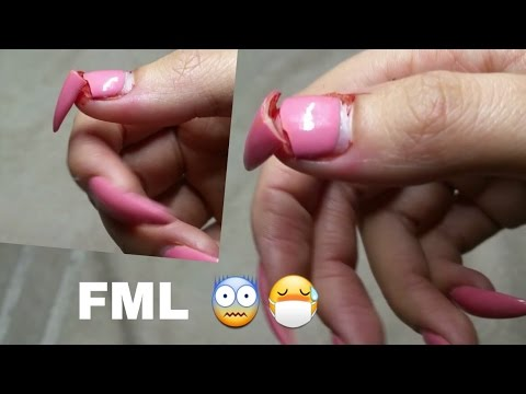 Xxx Mp4 I RIPPED MY ACRYLIC NAIL OFF PAIN WORST PAINFUL EVER I PASSED OUT 3gp Sex