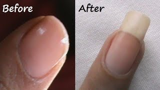 How to Grow Nails Faster Naturally? - SuperWowStyle