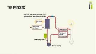 IGCSE Biology Revision - Part 1 - Kidney Dialysis