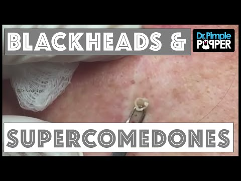 Blackhead Supercomedone Extractions Dr Pimple Popper