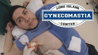 Male Gynecomastia (Breast Reduction) & Laser Lipo Huntington Long Island NY by Dr. Lebowitz