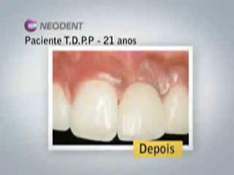 Portal do Implante Dentario portalimplante .br