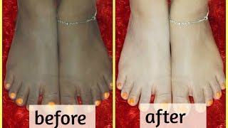 feet whitening pedicure at home--sun tan removal | natural ingredients |