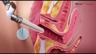 Femilift Yöntemi - Stres Üriner İnkontinans ( İdrar Kaçırma ) Tedavisi