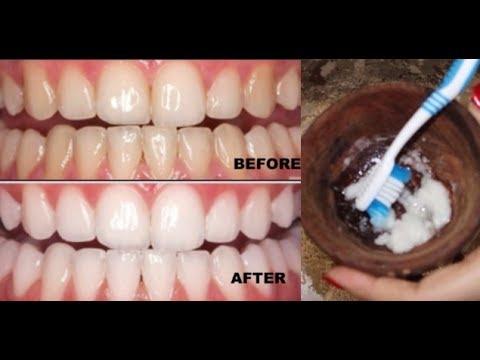 सिर्फ 2 मिनटों में पीले दांतों को मोती की तरह चमका देगा ये सबसे अद्भुत घरेलु नुस्खा | White Teeth