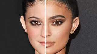 KYLIE JENNER: Before and After Plastic Surgery