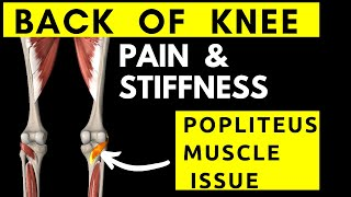 Physical Therapy Video: back of knee pain, Popliteus muscle tightness