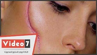 بالفيديو.. أحدث وأسرع طريقة لعلاج ندبات الوجه القديمة