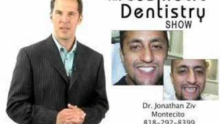 Cosmeic Dentist Montecito, CA Smile Makeovers with Veneers