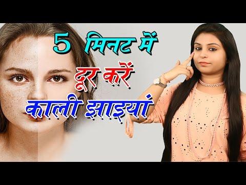 Xxx Mp4 5 मिनट में दूर करें काली झाइयां Home Remedies For Freckles Chehre Ki Jhaiyon Ka Ilaj Beauty Tips 3gp Sex