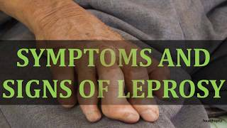 SYMPTOMS AND SIGNS OF LEPROSY