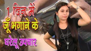 1 दिन में जूँ भगाने के घरेलू उपचार Home Remedies For Head Lice | Juon Ko Bhagane Ke Upchar - Tips