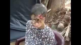 OMG! Flesh Eating Bacteria in Sri Lanka