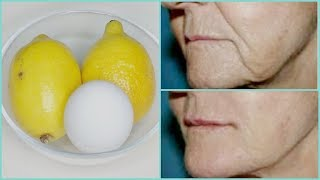 REMOVE WRINKLES, GET INSTANT FACE LIFT NATURALLY, MOUTH WRINKLES, HOMEMADE BOTOX |Khichi Beauty