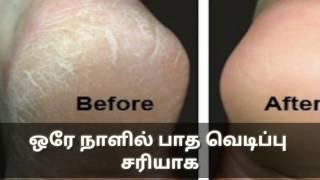 ஒரே நாளில் பாத வெடிப்பு  சரியாக(how to get rid of foot crack in Tamil)