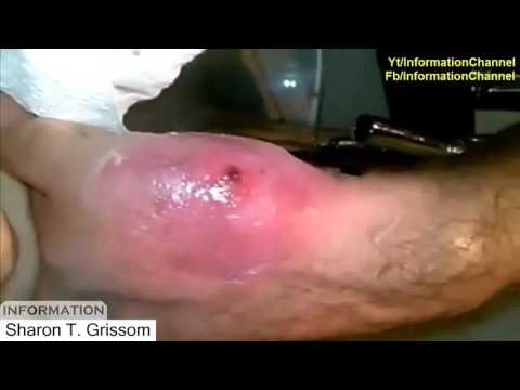Treatment video 2016 Monster botfly and mangoworms in human treatment Botfly removal vol 2 2