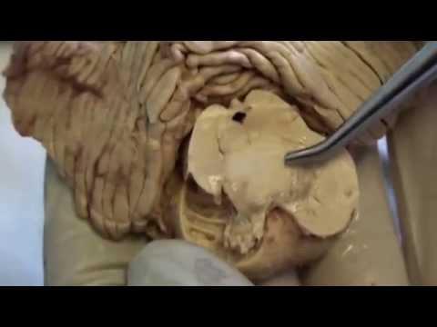 Xxx Mp4 Midbrain Cerebellum Dissection Video 4 Sanjoy Sanyal 3gp Sex