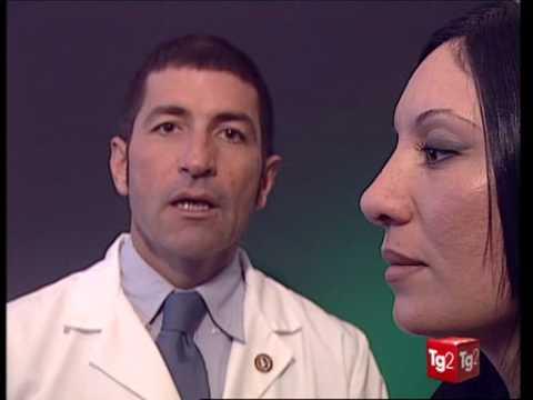 chirurgia plastica del naso