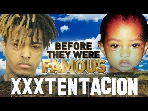 Xxx Mp4 XxxTENTACION Before They Were Famous Jahseh Onfroy 3gp Sex