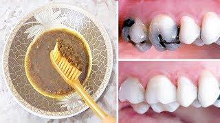 صدق او لا تصدق ازالة تسوس الاسنان والجير المتراكم نهائيا بدون حشو الاسنان