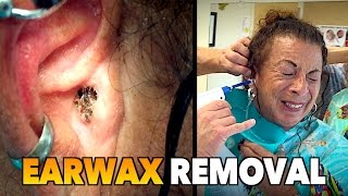 MASSIVE EARWAX REMOVAL! | Dr. Paul (feat. Maiya