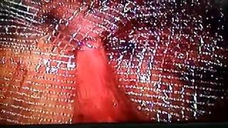 Паховая грыжа | Лапароскопия | Операция лазером | Dr. Sergey Grati