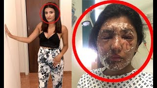 ACID ATTACK LEAVES GIRL WITH HARROWING LIFE CHANGING OUTCOME LONDON 2017 !!!