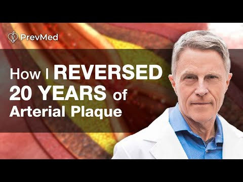 Xxx Mp4 How To Reverse 20 Years Of Arterial Plaque I Did Ford Brewer MD MPH 3gp Sex