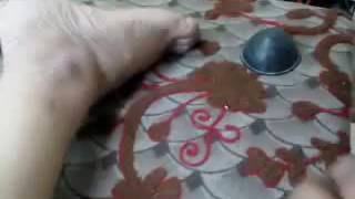 Low Back Pain  Discomfort  treated in 3 minutes  Acupuncture  Dr Verekar India    YouTube