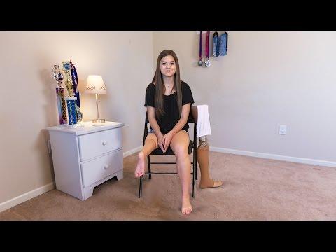 Teenage Ballerina Uses Ankle As Knee Joint