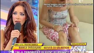 Bianca Drăgușanu, Bătută crunt de fostul iubit (Acces Direct- Antena 1) HD