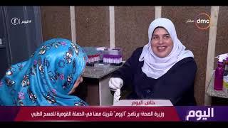 اليوم - وزيرة الصحة : المرحلة الثالثة لمبادرة القضاء على فيروس C تبدأ مارس القادم