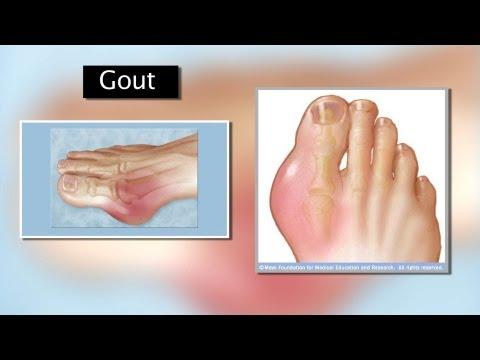 Xxx Mp4 Gout Mayo Clinic 3gp Sex
