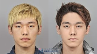 Guys Transform Into a Handsome Man, Plastic Surgery Korea Before and After