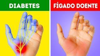 12 Problemas de Saúde Que Suas Mãos podem Alertar