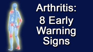 Arthritis: 8 Early Warning Signs